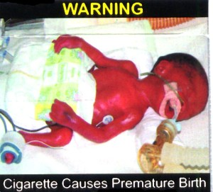 Pemature Birth